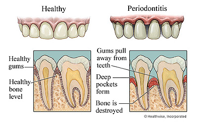 image of good and bad periodontal care