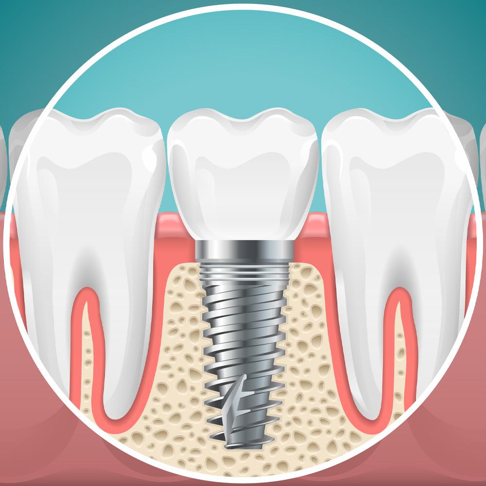 depiction of a dental implant at zaborski dental
